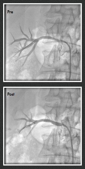 renal stenosis 4